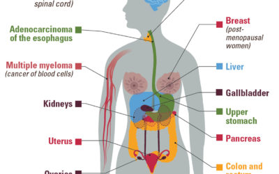 Obesity and Cancer Information