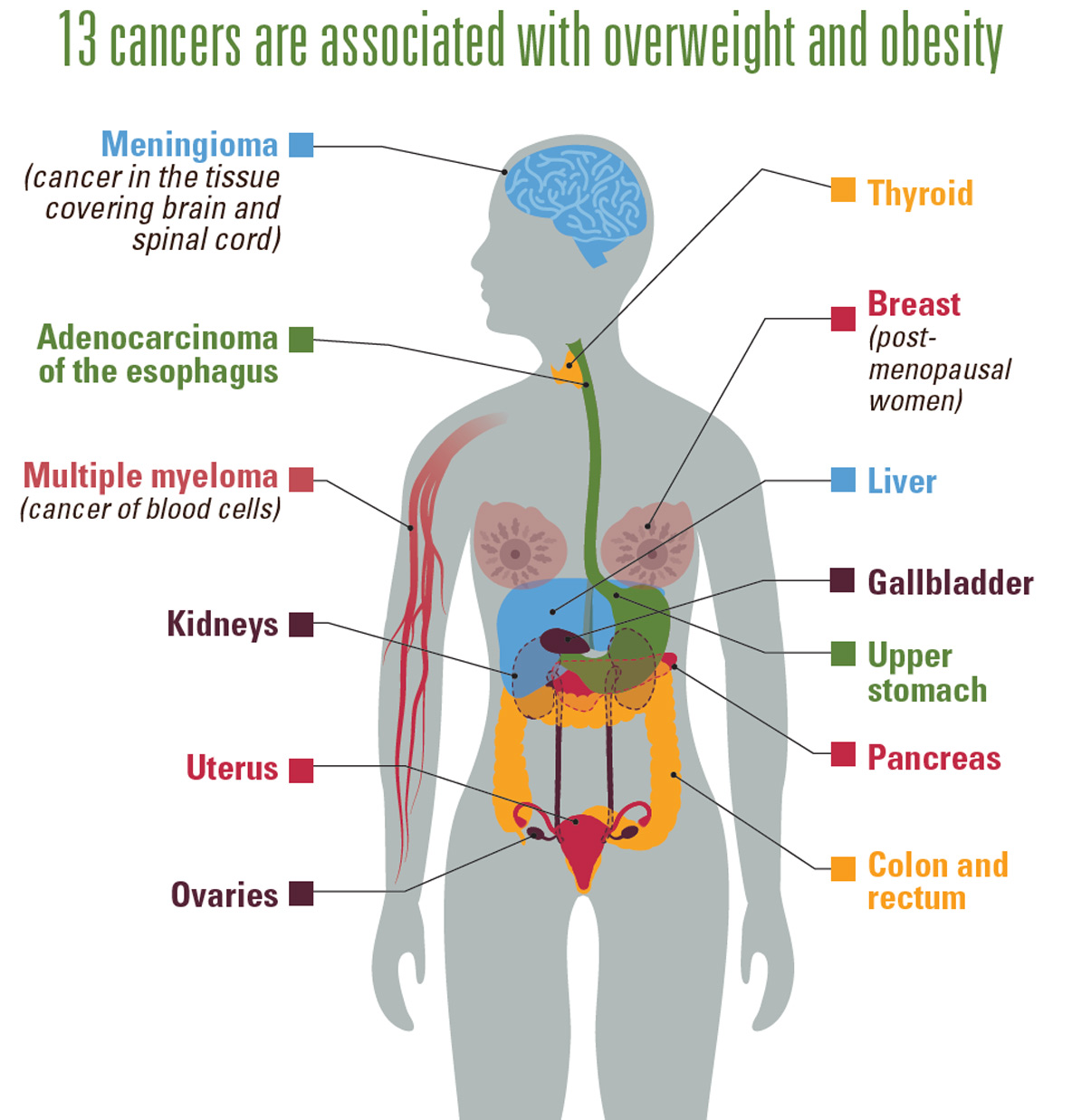 Obesity And Cancer Information American Board Of Obesity Medicine
